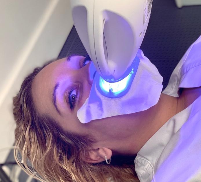 Blanqueamiento personalizado en clínica - Clínica Sánchez-Campos