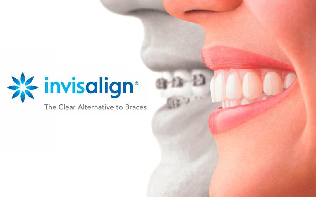 Ortodoncia invisible - tratamiento en Clínica Sánchez-Campos